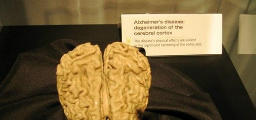 Ультразвук помог побороть потерю памяти при болезни Альцгеймера