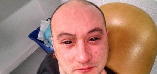 Биохакер получил зрение ночного эльфа