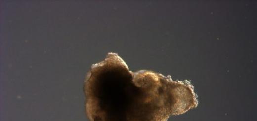 Ученые вырастили миниатюрный мозг